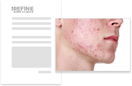 Fast, Simple Online Consultations from Refine Acne Clinics